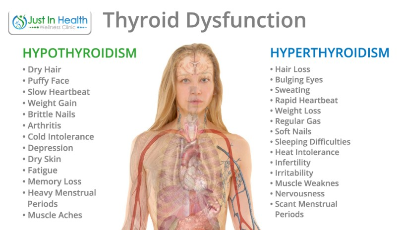 SIGNS OF THYROID ISSUES