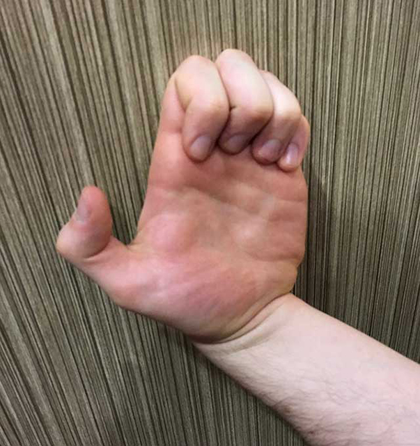 Image of back of the hand jive yoga hand strengthening position
