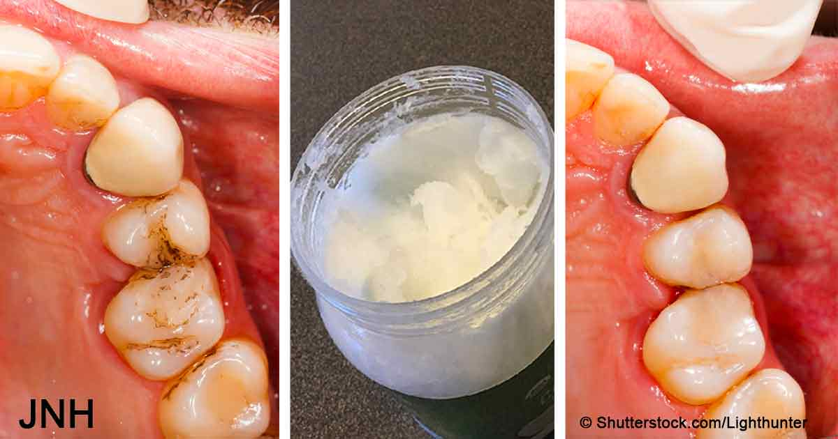 Rinse your mouth with 1 Tbsp of coconut oil and this will happen to cavities