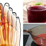 This Fruit Can Cure Your Gout!
