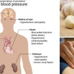 8 Tips To Lower Blood Pressure Without Synthetic Medicine