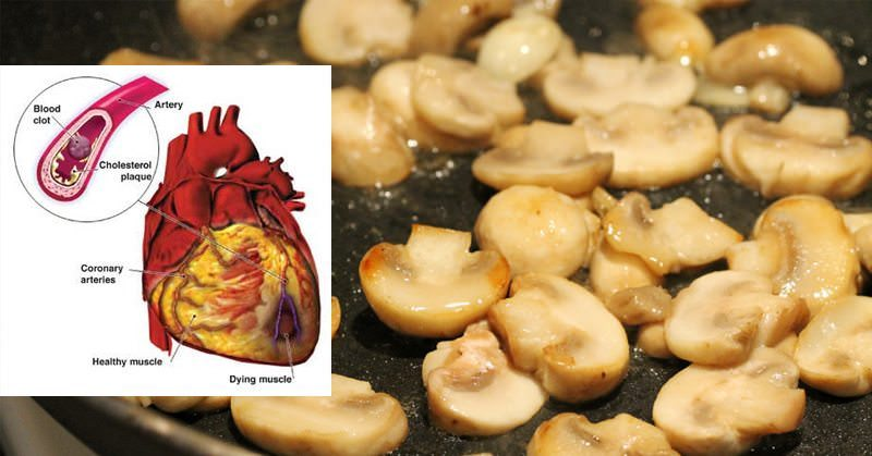 Heal Cardiovascular Disease With The Medicinal Power Of Mushrooms