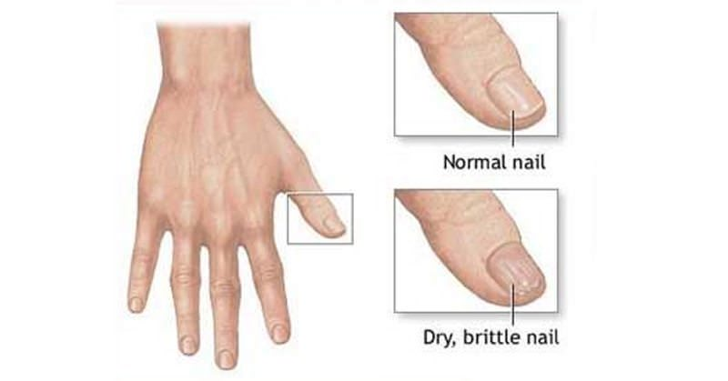Stop Nails From Cracking With This One Natural Remedy