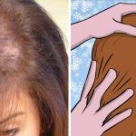 Prevent Early Hair Loss With This Powerful Trick