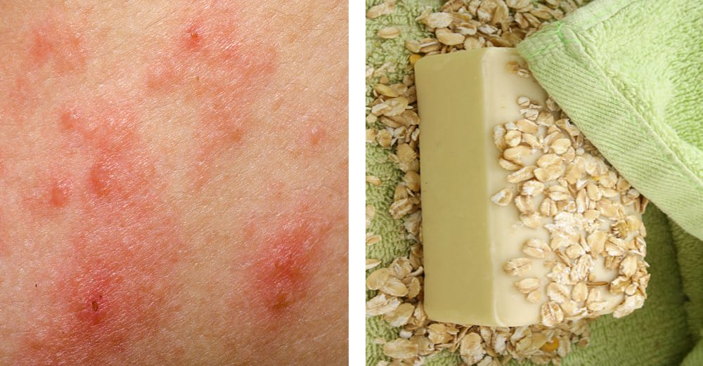 Ease Eczema Itch in Minutes With These Simple Natural Cures