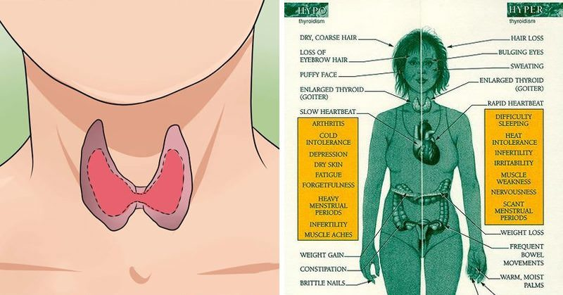 10 Common and Hidden Symptoms of Thyroid Disorders (And What to Do if You Have One)