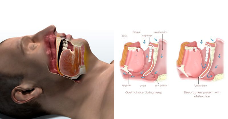 3 Sleep Apnea Symptoms That Everyone Ignores and 5 Reasons You May Have It