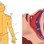 9 Simple Tricks to Get Rid of Sleep Apnea (And Snoring) Naturally