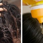 Dandruff shampoos are FILLED with toxic ingredients (use these instead)