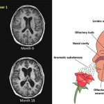 4 Ways to Prevent Multiple Sclerosis Flare Ups