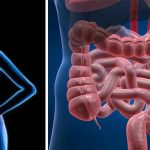 Autoimmune diseases are caused by inflammation and leaky gut (Here's how to fix it)
