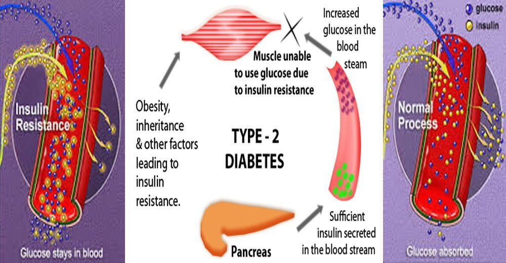 Naturally Reverse Type-2 Diabetes!