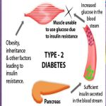 Naturally Reverse Type-2 Diabetes!
