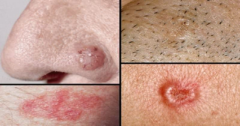 Natural and Alternative Ways to Flush Away Skin Cancer