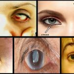14 Things Your Eyes Can Tell You about Your Health