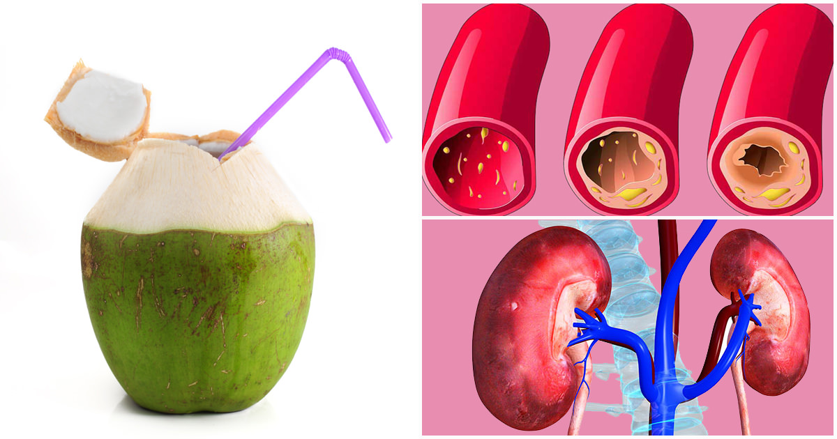 Experience these 8 amazing health benefits when you drink coconut water