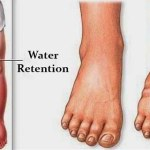 6 Things That Cause Fluid Retention in Your Body and How to Avoid Them