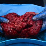 The Placenta is Not Suitable as a 'Superfood'