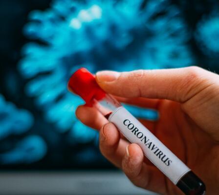 Romatoloji uzmanları koronavirüs salgını döneminde romatizmal hastalıklar hakkında merak edilenleri yanıtladı 15