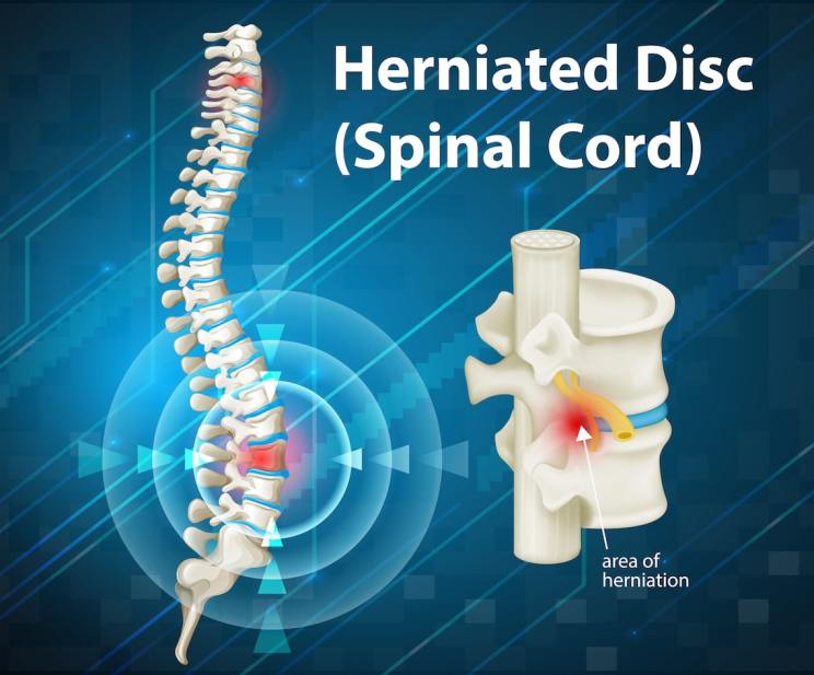 Motorcycle accident spinal cord injury