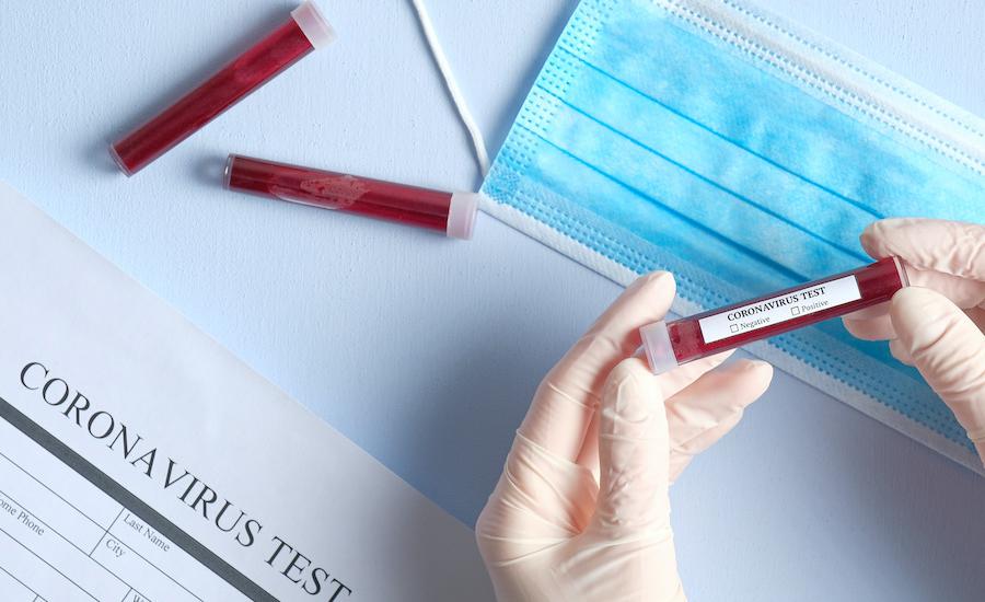 एकै टोलका २२ जनामा कोरोना भाइरस संक्रमित