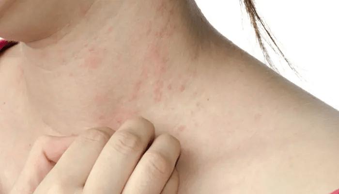 किन हुन्छ एलर्जी, कसरी बच्ने ?