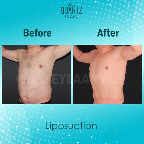 Kimler Liposuction İçin Doğru Adaydır?