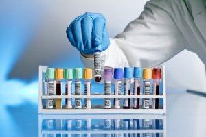 Laboratuvar Testleri İle Hamilelik Tespiti