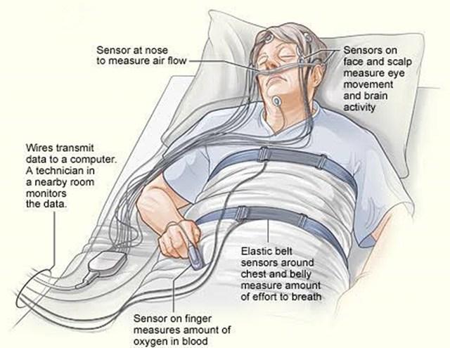 ภาพวาดแสดงการทดสอบการนอนหลับ แสดงถึงอุปกรณ์ต่างๆ ที่ต้องใช้ และแต่ละอุปกรณ์เอาไว้ทำอะไรบ้าง เป็นภาษาอังกฤษ