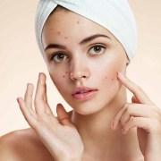 face acne removal cream hindi