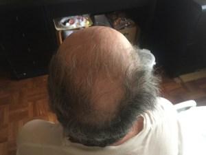 禿げトリビア