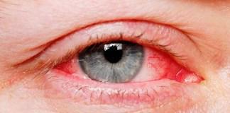 Red Eyes - Reasons for Bloodshot
