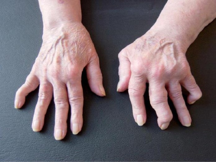 Swollen Hands : Health Tips, Beauty Tips, Daily Health Tips, Tamil Maruthuvam Tips, Top 10 Best Health Benefits, Health Tips Daily Life