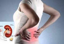 Do you know what caused kidney stone?