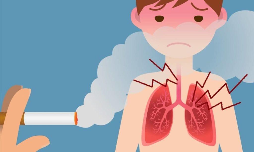 Bahaya rokok untuk anak