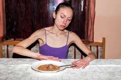 ψυχογενής ανορεξία