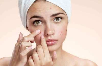 How to prevent dark spots on face