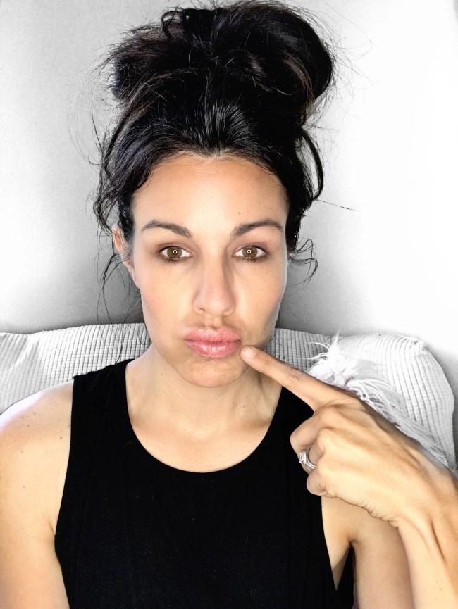 Basics of lip filler
