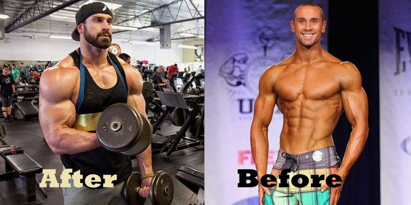 Bradley-Martyn-before-and-after