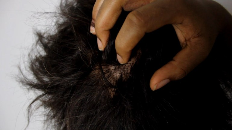 Itchy Scalp: Natural Remedies
