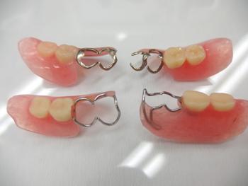 遊離端義歯