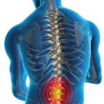lower-back-pain-management