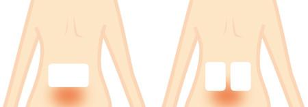 ぎっくり腰の湿布の貼り方