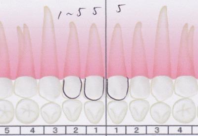 前歯の虫歯の位置