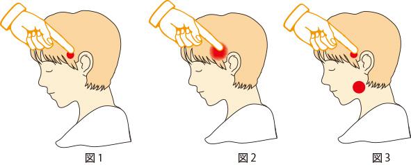 痛 方 治し 額 関節 症
