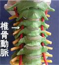 椎骨動脈狭窄