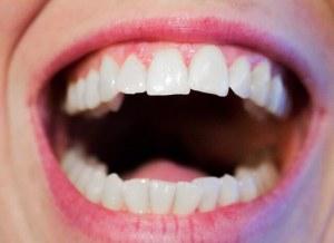 歯茎の晴れ