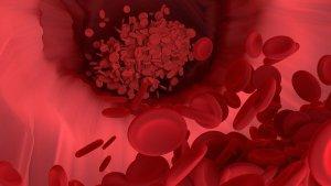 血小板減少性紫斑病・ベーチェット病