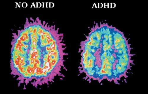 People with ADHD have less activity in areas of the brain that control attention. – edublox.com