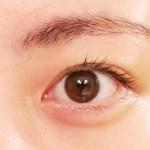 目の粘膜に水疱ができた時に考えられる原因と適切な対処法